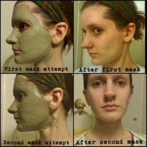 AztecClay-mask-acne-1