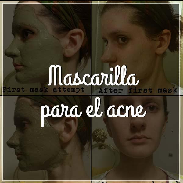 mejor-mascarilla-para-el-acne